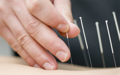 How acupuncture helps reduce pain, promote wellness